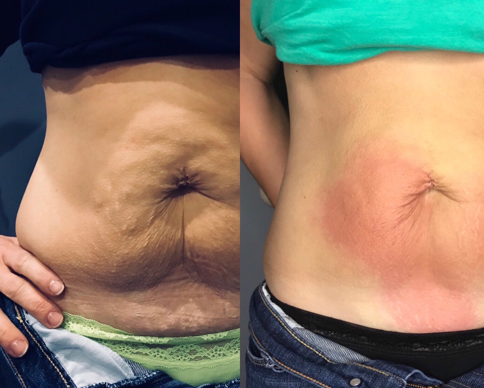 Abdominal Skin Tightening Without Text